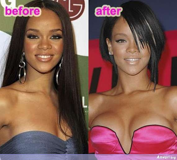 Breast Enlargement 08 - Stars with Breast Enhancement
